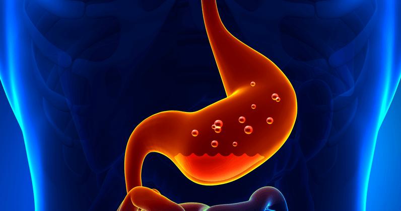 Brandend maagzuur en wat je eraan kunt doen